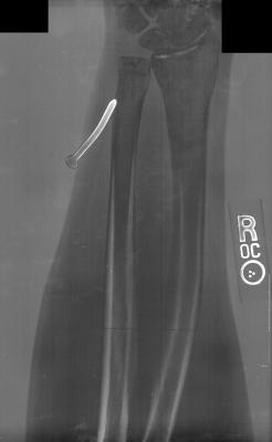 X-Ray of nail in arm